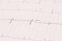 Royalty Free Photo of an Electrocardiogram