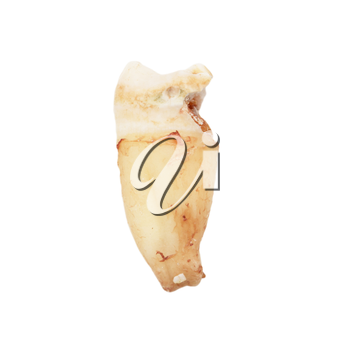 tooth on a white background. macro